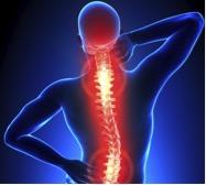 douleurs-posturales