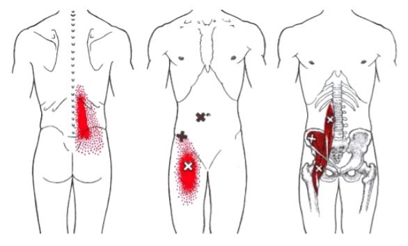 Zone-douleurs-psoas-irrité-contracté-aine-lombaires