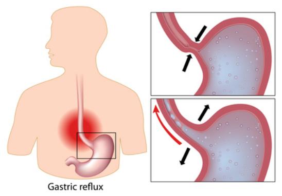 traitement-osteo-reflux-gastrique-femme-enceinte