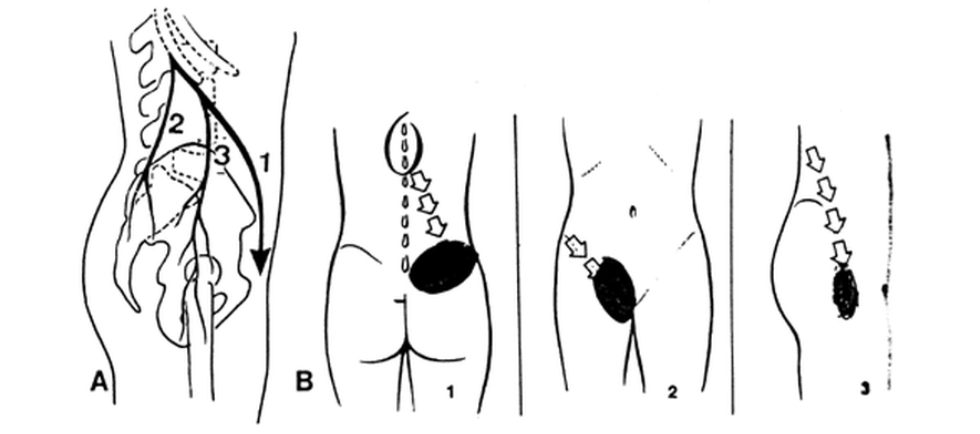 douleurs-projetées-syndrome-de-maigne