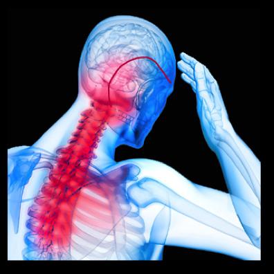 Traitement De La Névralgie D Arnold Avez Vous Pensé à L Ostéopathie