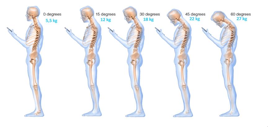 influence inclinaison de la tete sur le mal au cou