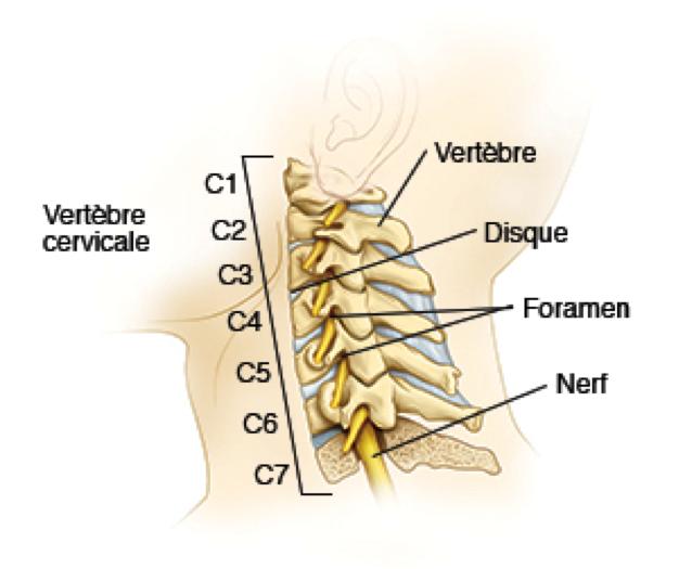 origine vertébrale douleurs cervicales
